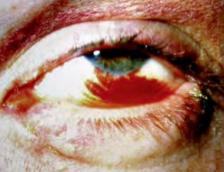 hemorragia subconj