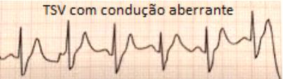 9-TSV AB